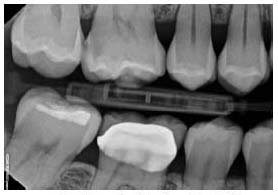 ... or between teeth on x rays cavities show up as dark spots like these